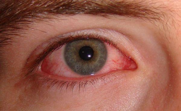 Глаза красные от компьютера